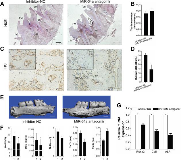 Declining osteogenesis of local N-Ac-l -Leu-PEI-mediated miR-34a antagomir delivery on alveolar bone and OTM in vivo.