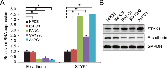 STYK1 and E-cadherin were inversely correlated in pancreatic cancer cell lines.