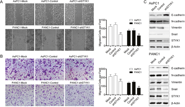STYK1 knockdown inhibited cells migration through EMT.