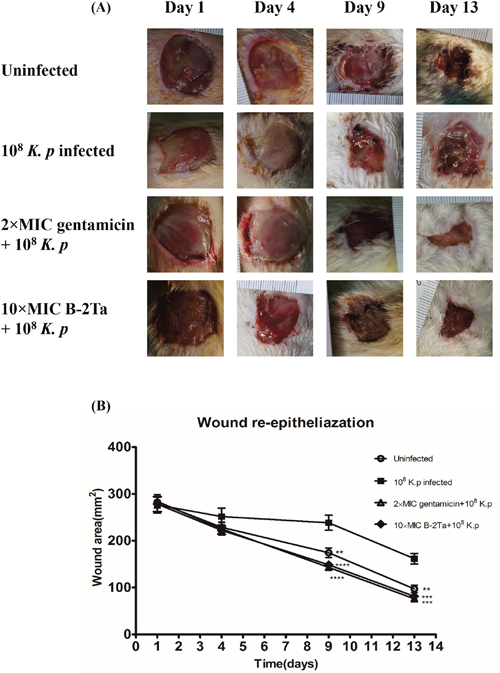 B-2Ta improved K. p-infected wound healing.