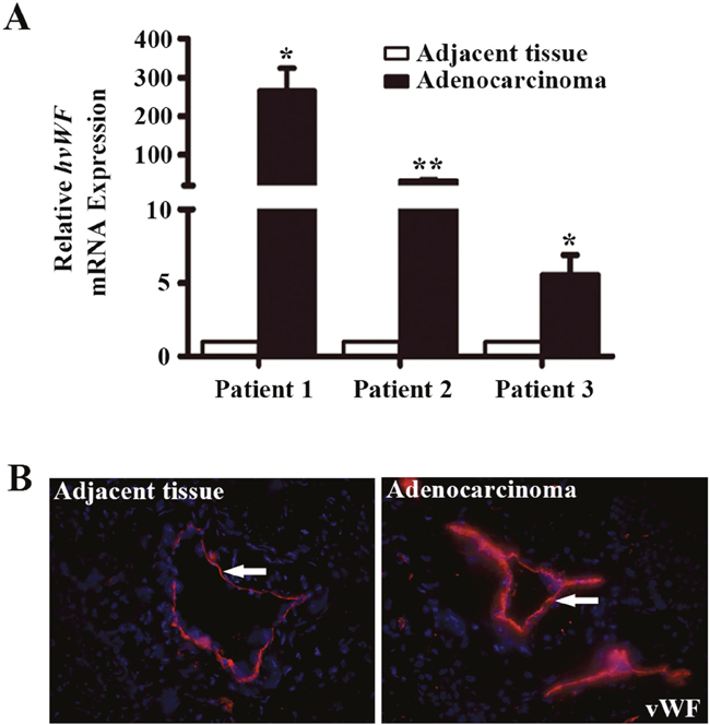 Analysis of vWF expression in fresh samples of human lung adenocarcinoma tissues.