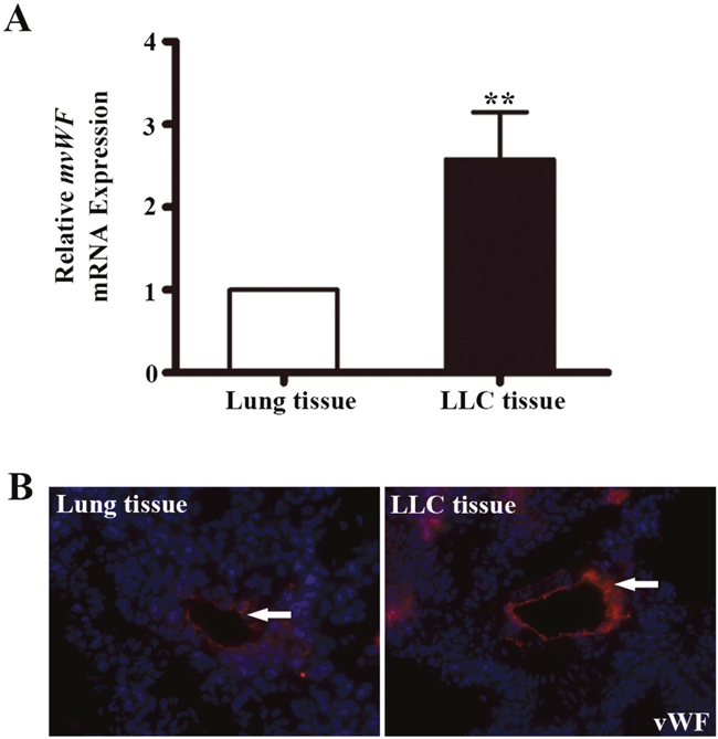 The expression of vWF in mouse lung adenocarcinoma tissues.