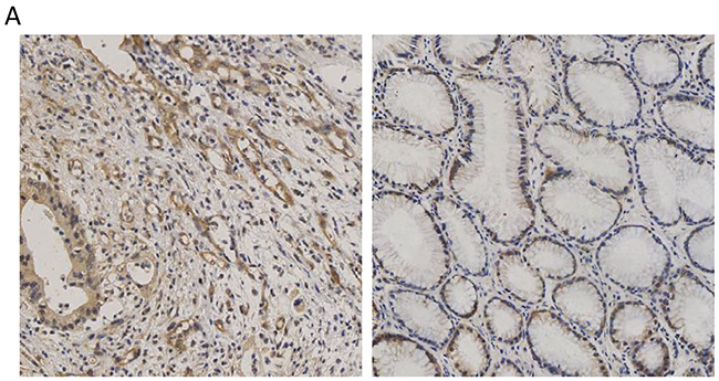 Expression of CCT3 in the gastric cancer and non-cancerous gastric epithelium.