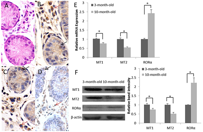 Expression and localization of the melatonin membrane receptors (MT1 and MT2) and nuclear receptor (RORα) in the goat testis.