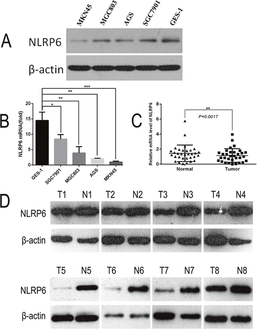 Expression of NLRP6 in gastric cancer cell lines.
