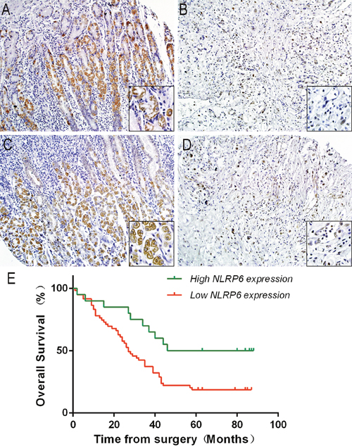 NLRP6 protein expression in gastric cancer surgical specimens evaluated by immunohistochemistry (×200, The lower right×400) and Kaplan-Meier survival curves of gastric cancer patients after gastrectomy.