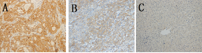 Representative immunohistochemical staining of AGGF1 and higher positive frequency in HCC tissues in HCC tissues.
