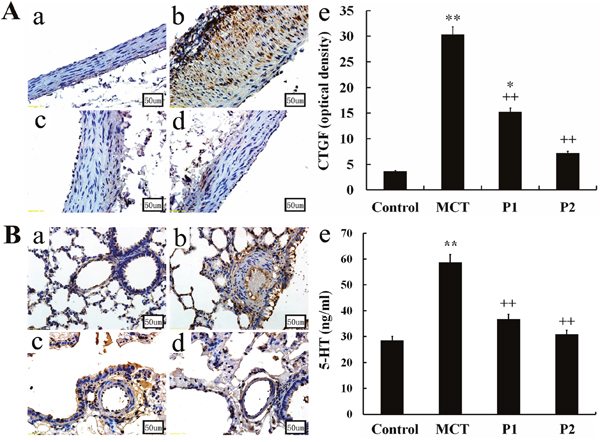 Immunohistochemical determination of CTGF expression in the aortopulmonary and pulmonary arterioles.