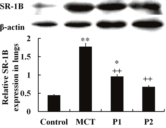 Western blot analysis of SR-1B expression in lung tissues.