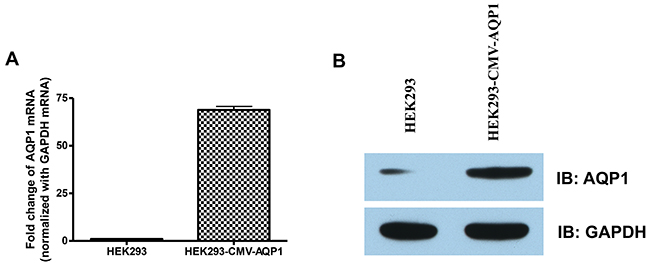 Detection of AQP1 expression in the stable HEK 293 cells. HEK293 and HEK293-CMV-AQP1 cells were collected.