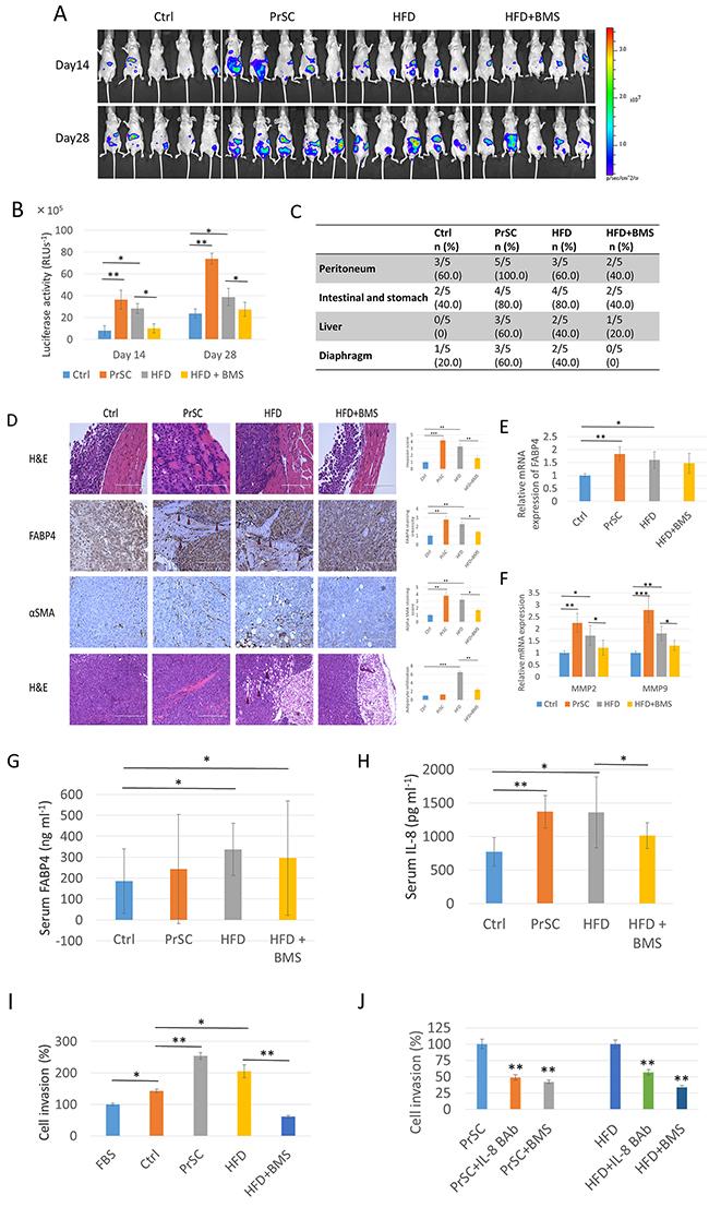 PrSC or HFD conditions stimulate PCa metastasis and invasiveness invivo.