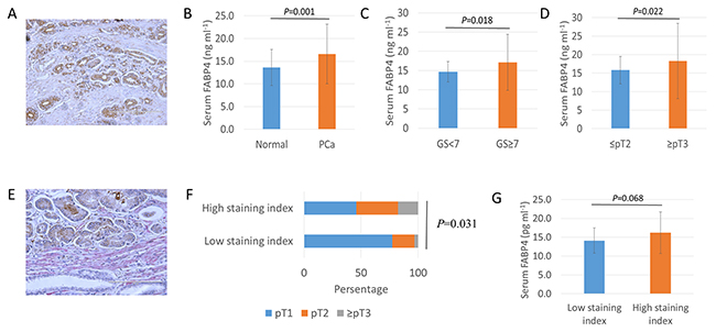 Overexpression and secretion of FABP4 is associated with PCa progression.