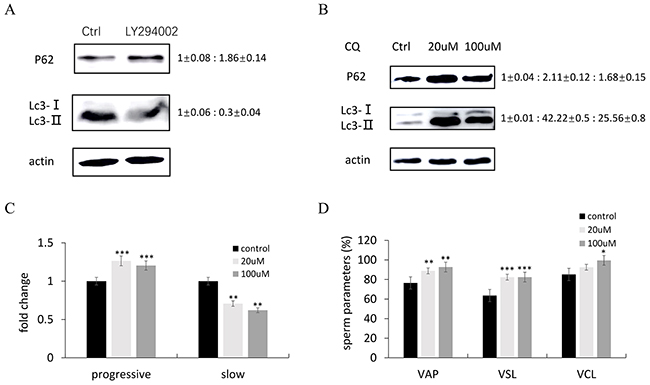 The effects of LY294002 and chloroquine (CQ) on autophagy in zebrafish testis.