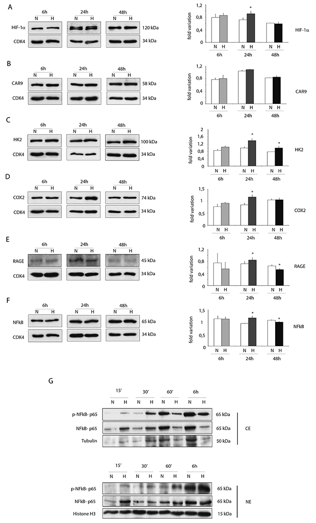 Hypoxia enhances protein expressions of pro-inflammatory proteins in ckit+CSCs.