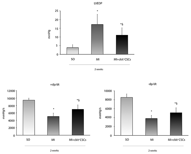 Effects of ckit+CSCs on cardiac function.
