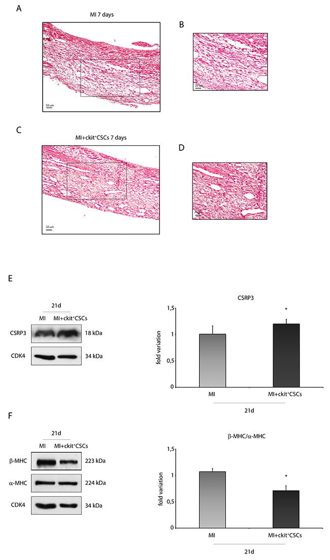ckit+CSCs attenuate hypertrophy following acute MI.