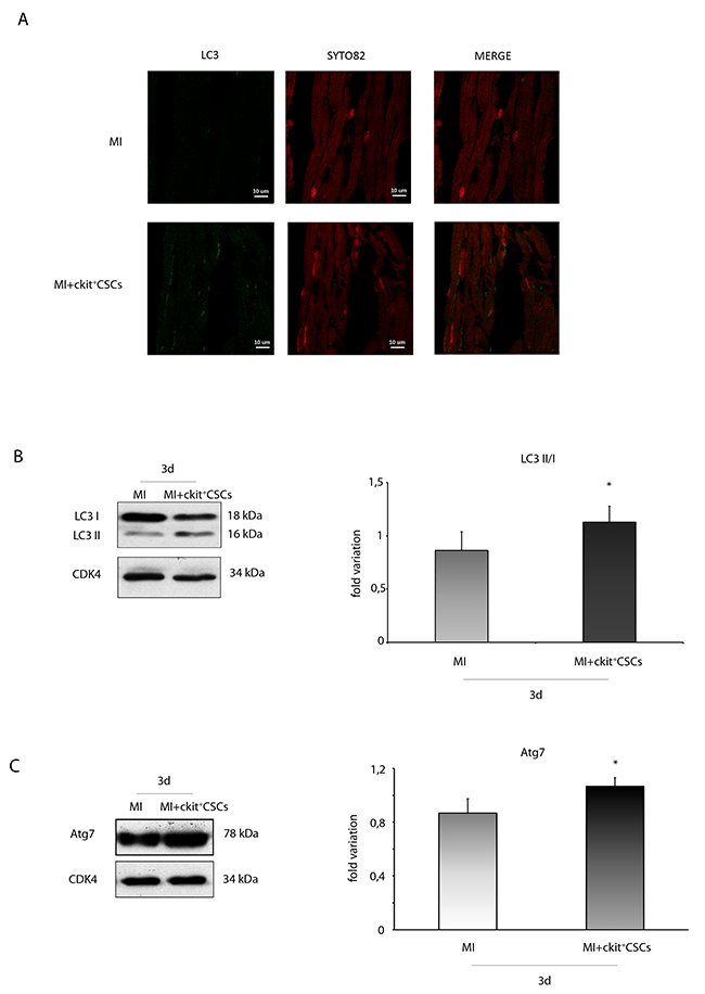 ckit+CSCs modulate the expression of autophagic markers in treated infarcted hearts.