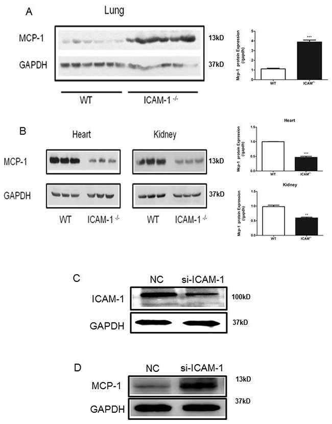 ICAM-1 deficiency or downregulation promotes MCP-1 expression in mouse lungs and macrophages.
