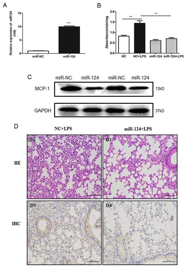 MiR-124 protects against lung injury in mice.