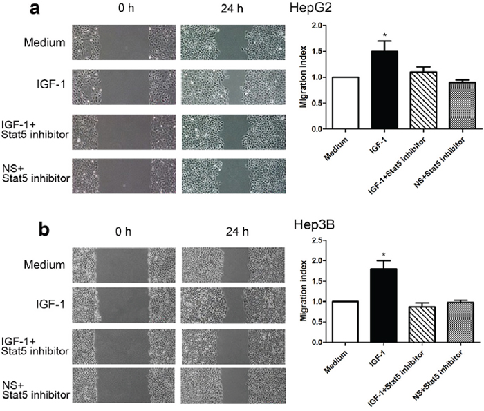 Stat5 inhibitor reduced IGF-1-induced wound closure in HepG2 and Hep3B cells.