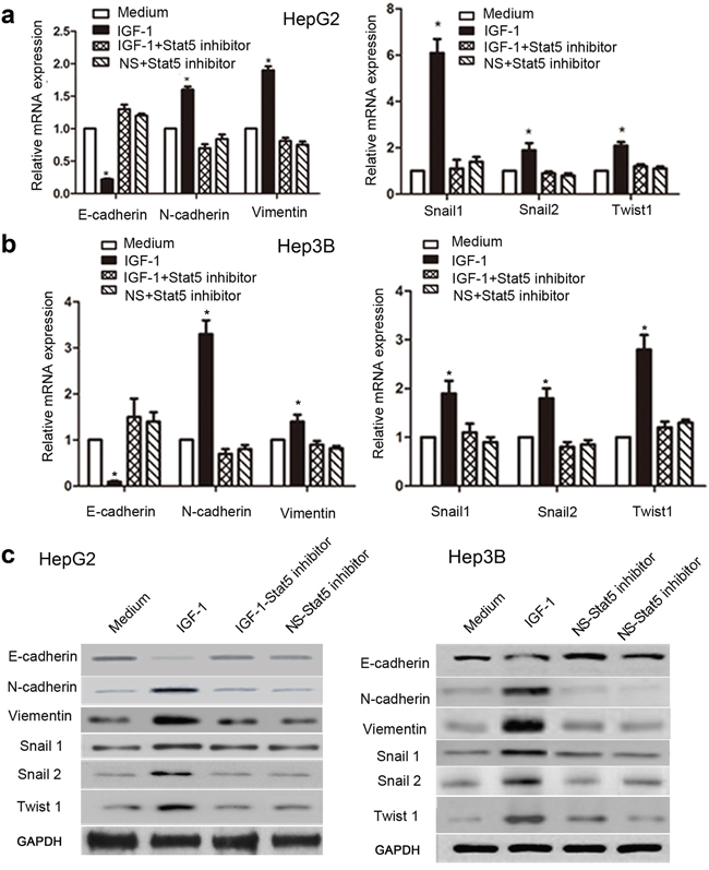 Stat5 inhibitor down-regulated IGF-1-induced EMT in HepG2 and Hep3B cells.