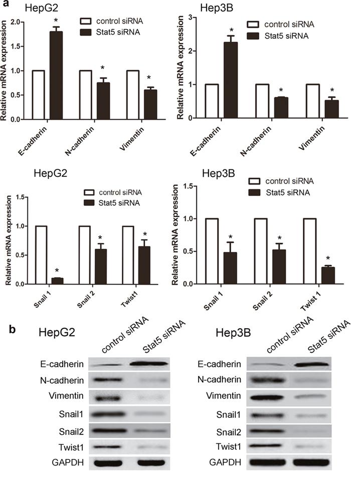 Stat5 siRNA reversed IGF-1-induced EMT in HepG2 and Hep3B cells.
