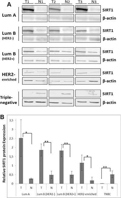 Differential SIRT1 protein expression patterns in breast tumors.