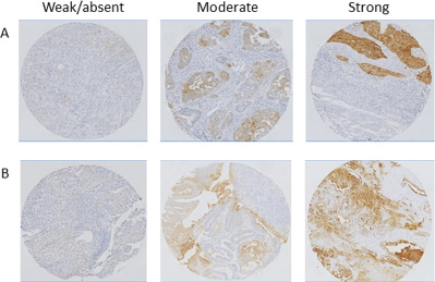 Representative examples of FRα expression status in endometrioid and clear cell EC.