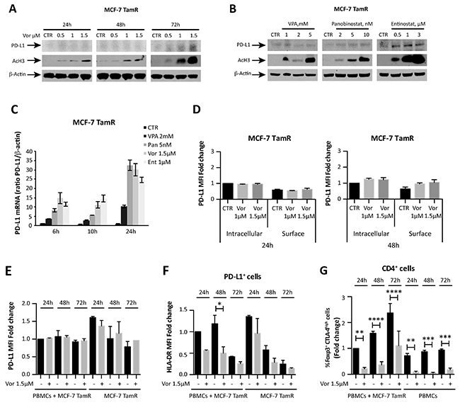 HDACi effect on tamoxifen-resistant MCF-7 breast cancer cells.