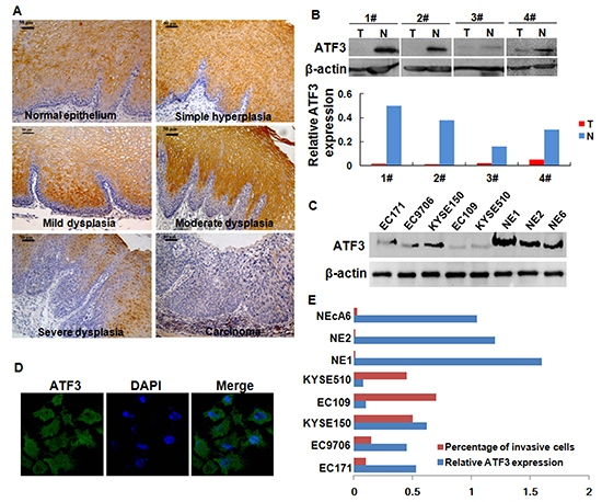 Expression of ATF3 in ESCC tissues and ESCC cell lines.