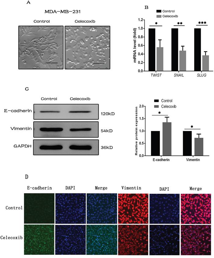 Celecoxib inhibits EMT gene signature.