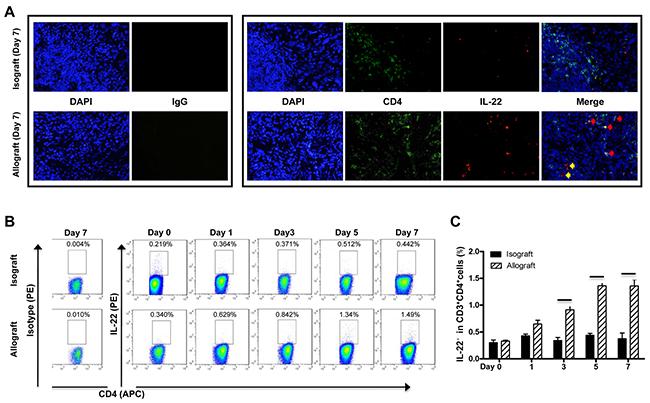 Cellular source of IL-22 in liver transplantation.
