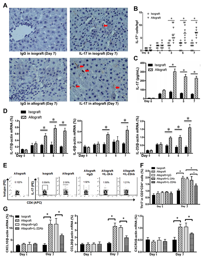 Enhanced Th17 cells in allografted liver tissues.