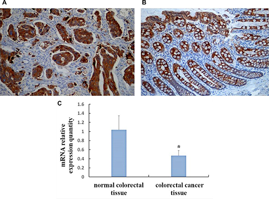 Expression of SOCS3 in CRC and normal colorectal tissue by immunohistochemical method and qRT-PCR.