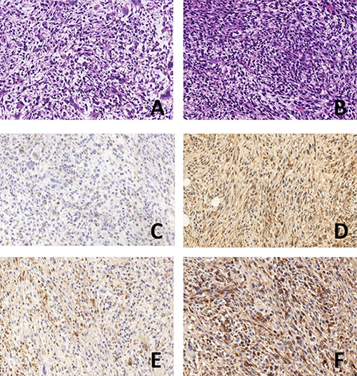 HE and immunohistochemical detection of subcutaneous tumor xenografts in nude mice (× 400).