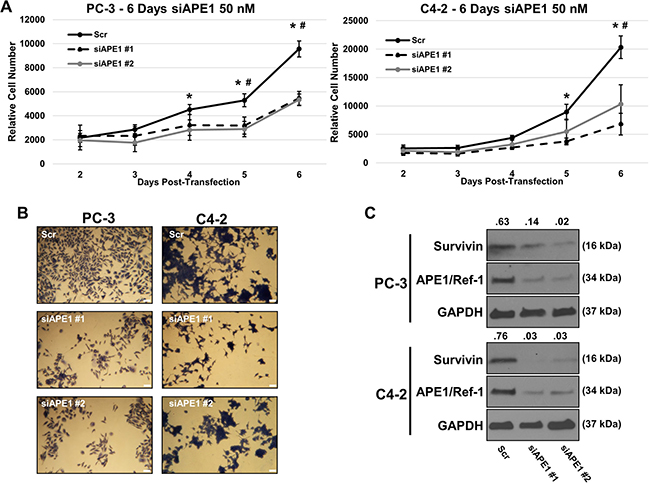 APE1/Ref-1 siRNA knockdown decreases cell proliferation and survivin protein levels.