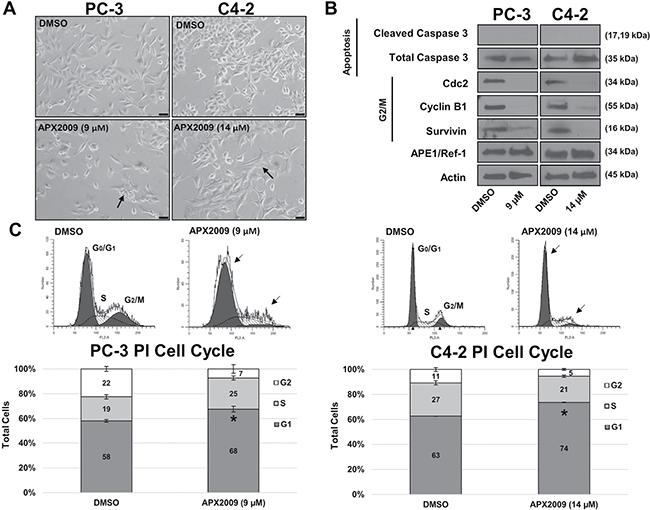APE1/Ref-1 redox inhibition induces G1 cell arrest.