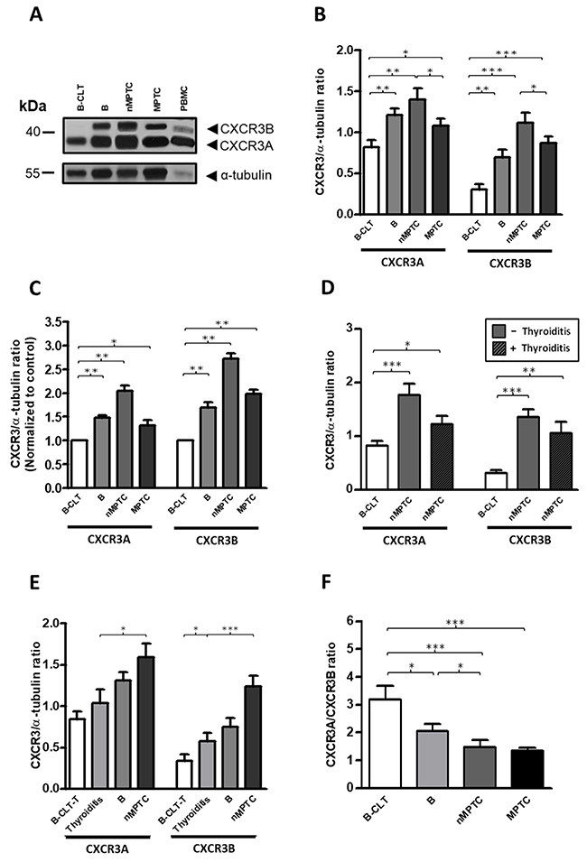 A progressive increase in protein balance (CXCR3A/CXCR3B ratio) from benign to PTC tissues.