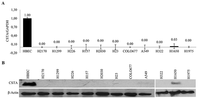 Expression of CSTA in lung cancer cell lines.