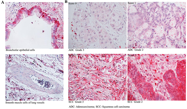 Expression of CSTA in normal lung tissue and primary lung tumor.