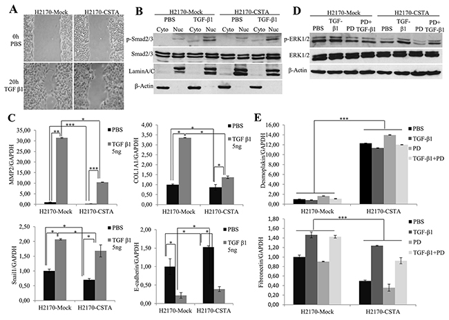 CSTA overexpression prevents TGF-β1 induced EMT through inhibiting ERK/MAPK pathway.
