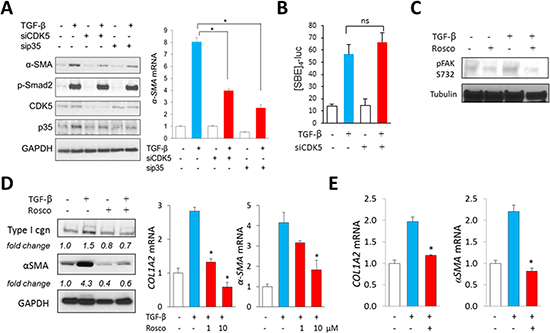 Inhibition of CDK5 signaling in fibroblasts abrogates TGF-β-induced responses.