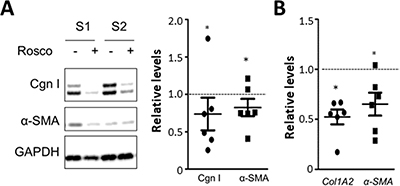 Roscovitine normalizes collagen overexpression in SSc fibroblasts.