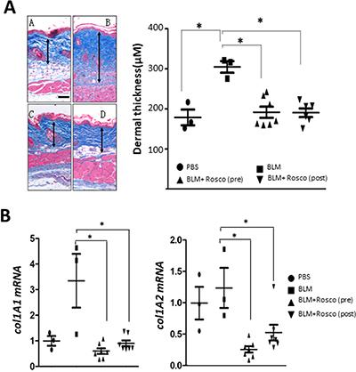 Roscovitine ameliorates and reverses bleomycin-induced scleroderma.