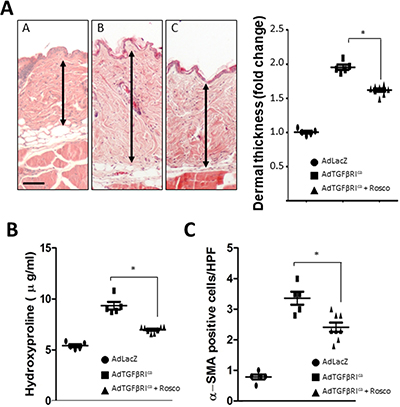 Roscovitine ameliorates TβRI-induced skin fibrosis.