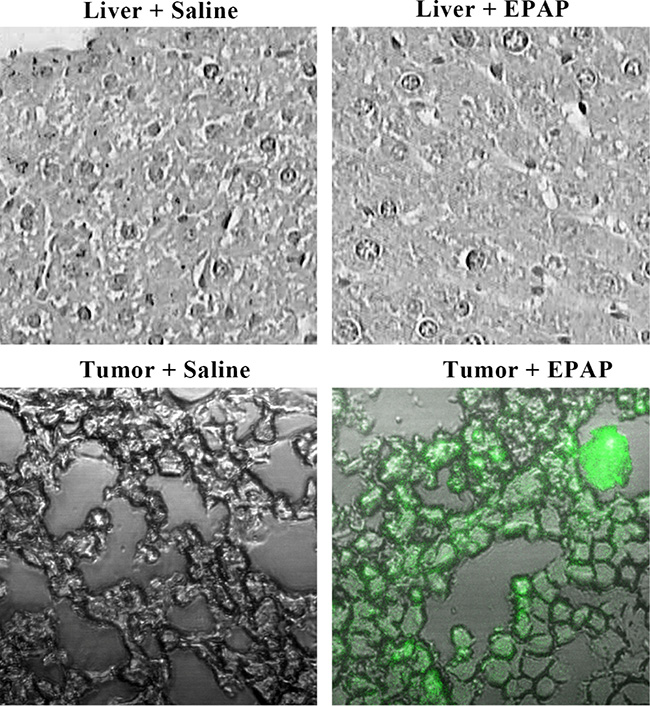 Uptake of EPAP by normal liver tissues and the HepG2 tumors treated by a single tail intravenous injection separately with 200 mL of saline as control and EPAP (4.32 × 109 PFU/mL), respectively.