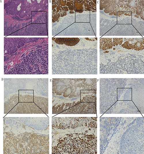 Examples of immunohistochemical staining of mixed type NEC and squamous carcinoma cells.