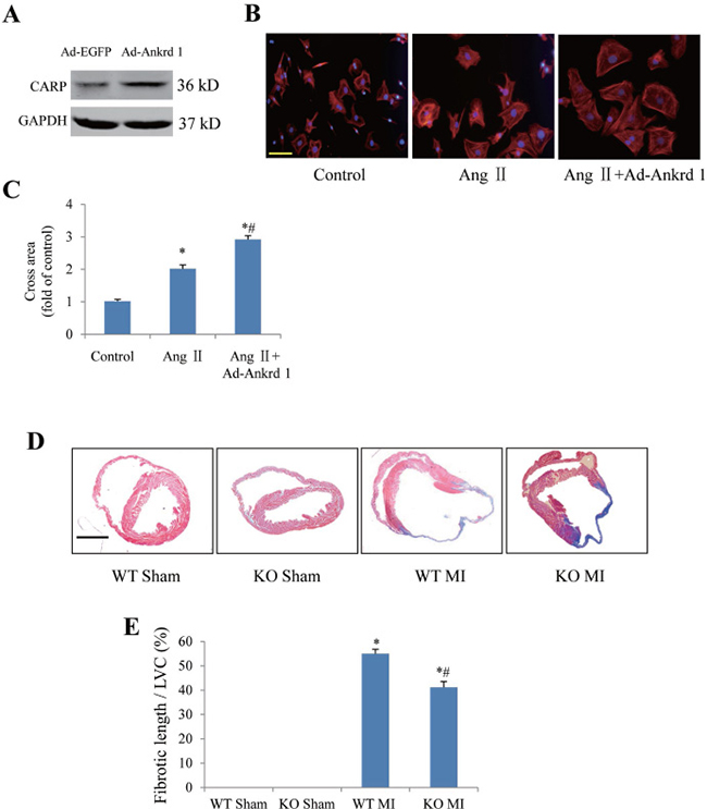 Confirmation of ankrd1 and periostin involving in myocyte hypertrophy or post-MI cardiac remodeling by using approaches of gain and loss of function.