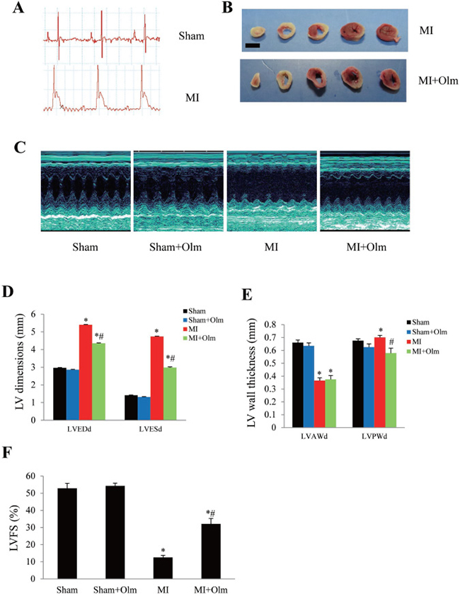 Treatment of olmesartan attenuates left ventricular dysfunction at 4 weeks after MI.