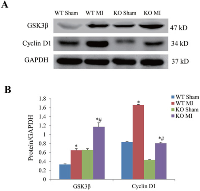 Effect of periostin knockout on expression of GSK3β and cyclin D1 at 7 days after myocardial infarction.